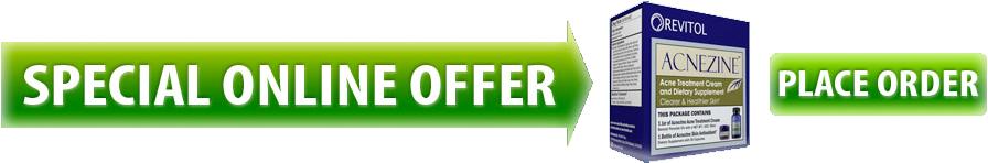 Acnezine Online Offer