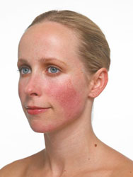 women needs rosacea treatment