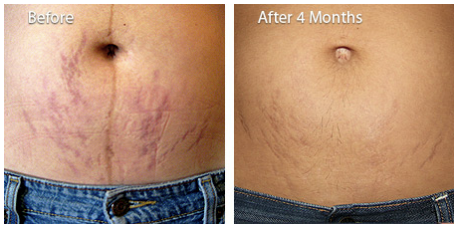 Use acne scar cream on stretch mark scarring before and after photos