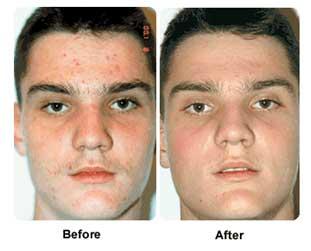 acnezine results