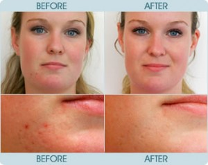 a female adult that suffers from bad acne and needs treatment